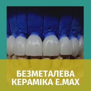 Безметалева кераміка E.max. Ivoclar (пресована)