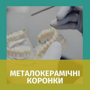 Металокерамічна коронка