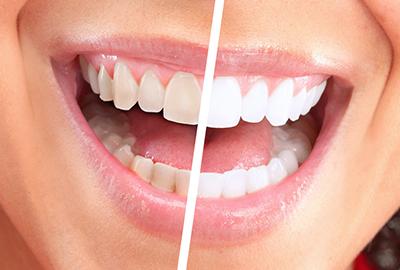 Профессиональная чистка зубов цена