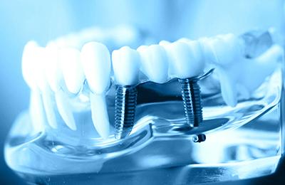 Протезирование зубов на имплантах недорого