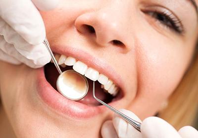 Гігієнічне чищення зубів ціна
