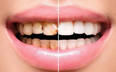 Художественная реставрация зубов Вишневое