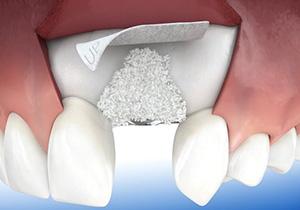 Проведення кісткової пластики в стоматологічній клініці UNISTA (ЮНІСТА)