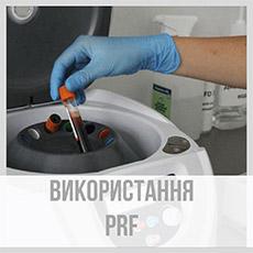 Використання PRF